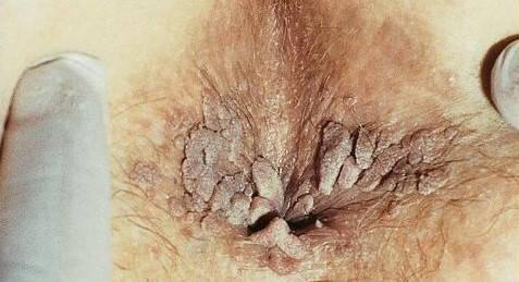 venerolog condilom