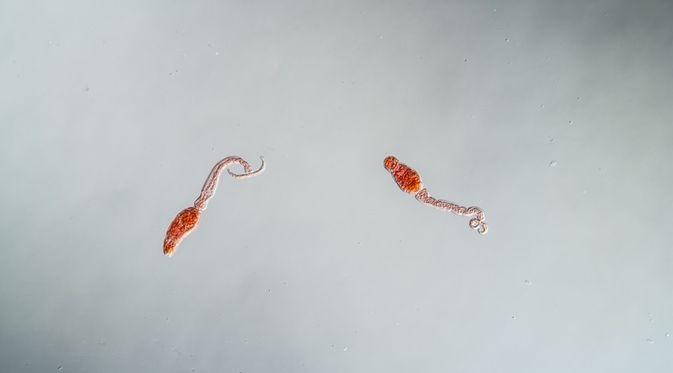 Dr. Diag - Schistosomiasis