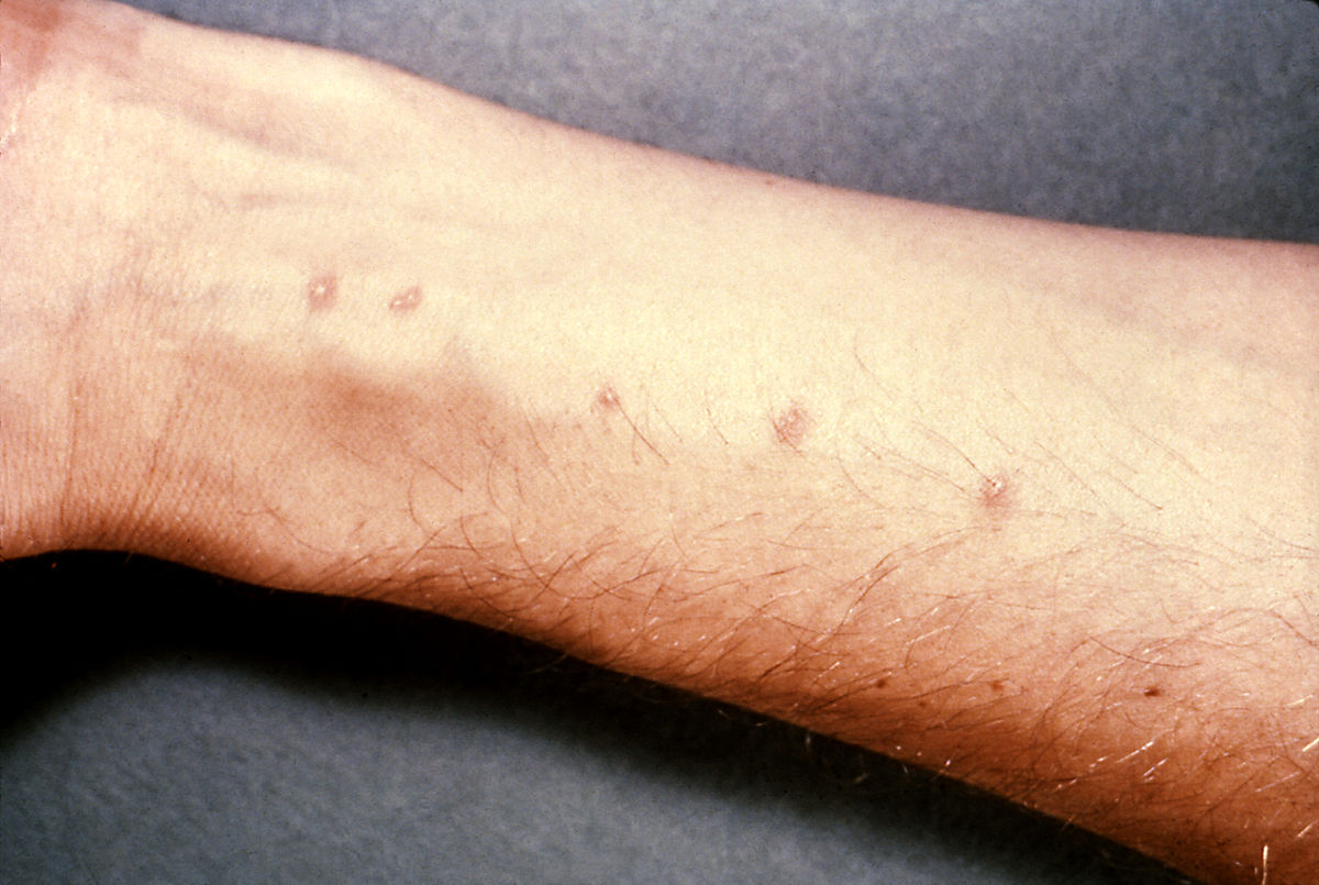 schistosomiasis q es baktériumok 11 doden
