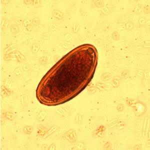 enterobius vermicularis k l kurd fertőzés)
