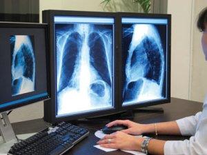 hasnyálmirigyrák röntgen