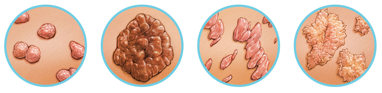 genitális hpv fertőzés rák