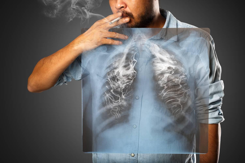 tüdőrák láz