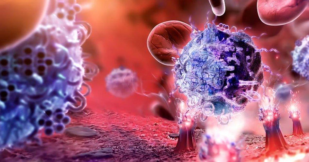 Autoimmun hemolitikus anaemia - Az orvos válaszol