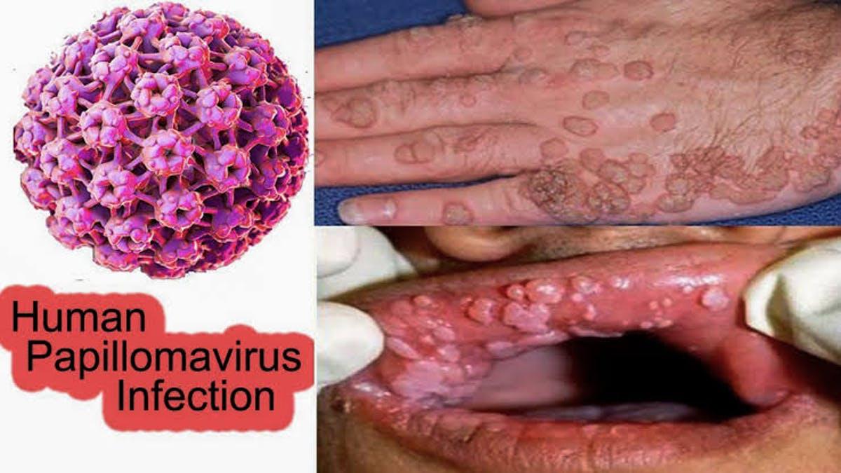 humán papillomavírus (HPV))