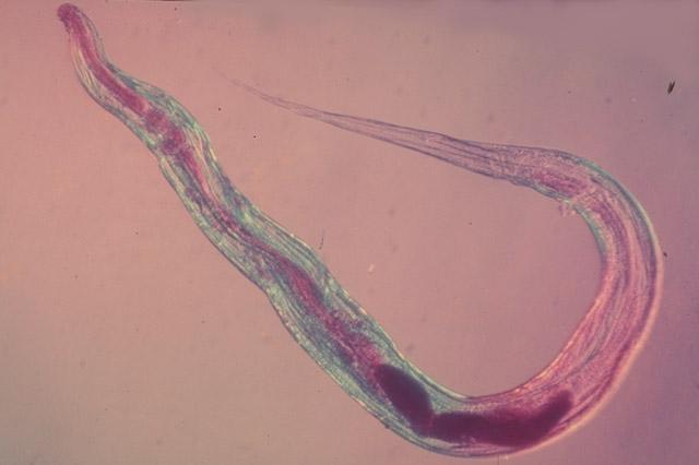 Kili paraziták gif Mely ponton pusztulnak el a pinworm tojások