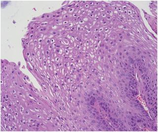 multiplex papilloma és papillomatosis)