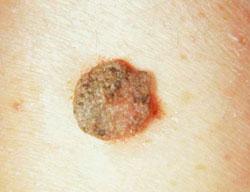 az érférgesség fertőzésének tünetei felnőtteknél szarkóma rák statisztikák