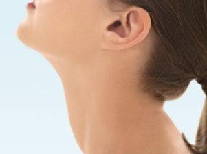 3. stádiumú nyaki rák)