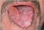 A szájban lévő papilloma fáj