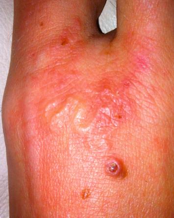 hookworm autoimmun terápia)