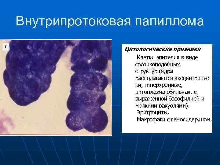 Intraduktális papilloma kezelés jelei   PapiSTOP