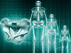 szarkóma csontrák