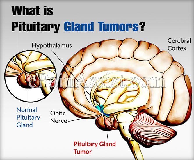 amely az agyalapi mirigy rákja vagy tabletta a féreg a féreg