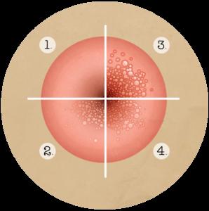 galandféreg emelkedik a nyelőcsövön keresztül méregtelenítés és böjt