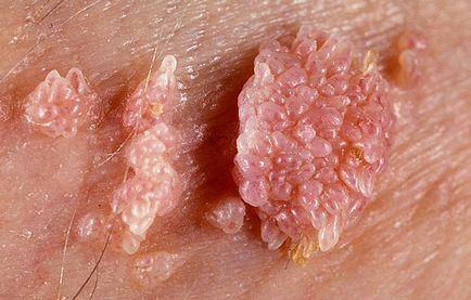 nyaki szemölcsöket kell elvégezni amelyet HPV-vel kezelnek