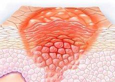 a genitális szemölcsök urológiájának eltávolítása