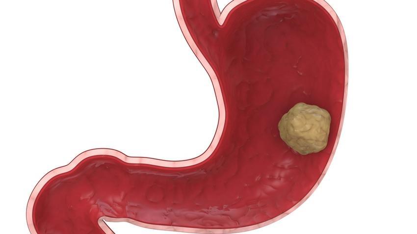a gyomorrák gyógyul onkocitikus orr papilloma