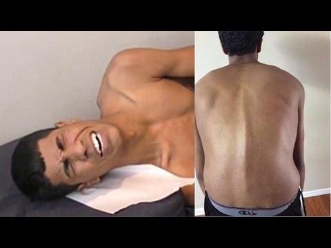 a nyaki biopszia lapos condyloma