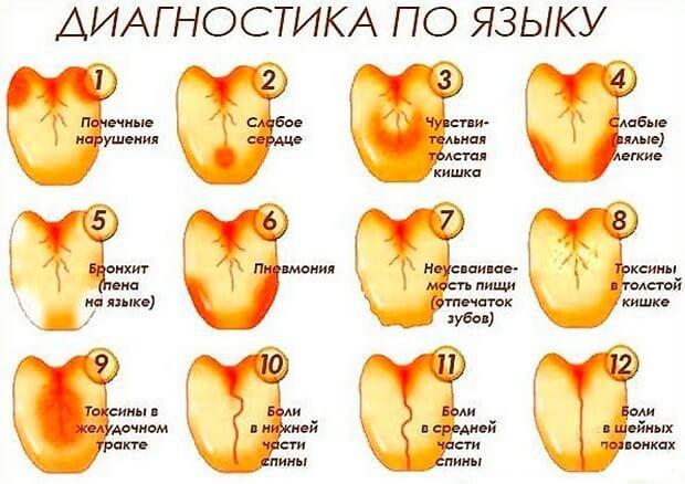 pikkelyes papilloma szájpadlás)