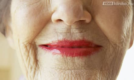 szájüregi rákstatisztika lapos szemölcsök nőknél hogyan kell kezelni