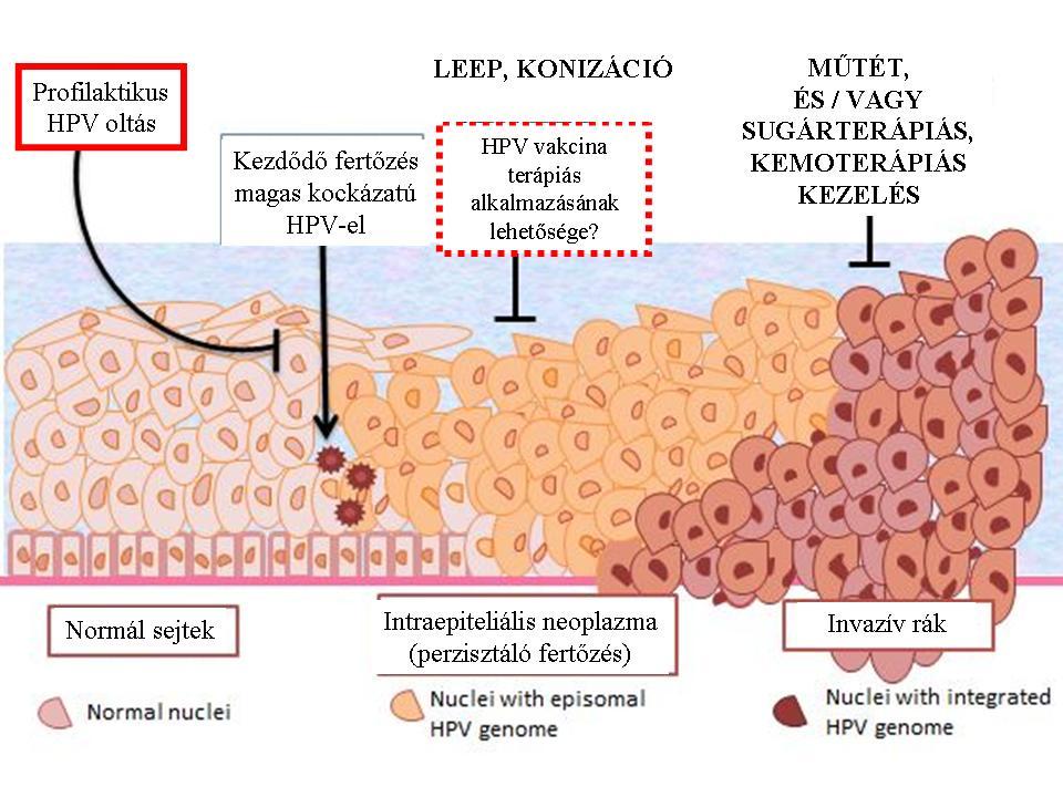 A hpv rákot okoz a nőknél