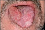 humán rákos papillomavírus