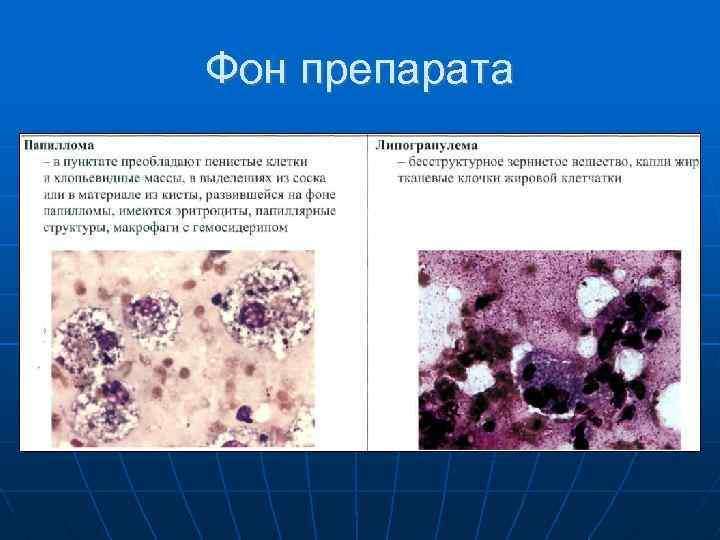 intraductalis papilloma patológia körvonalai húgycső condyloma a nők kezelésében