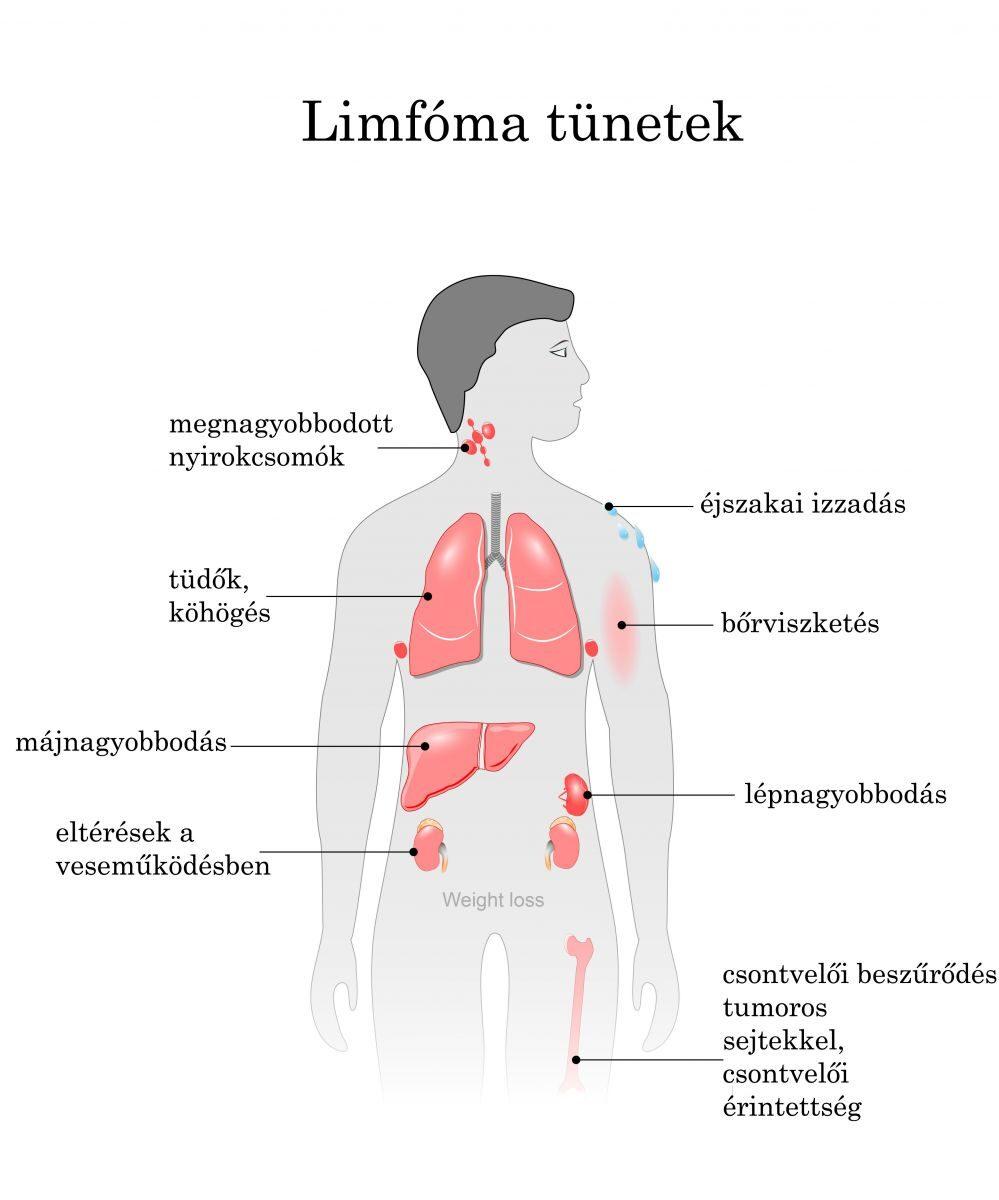 nyirokrendszeri rák tünetei