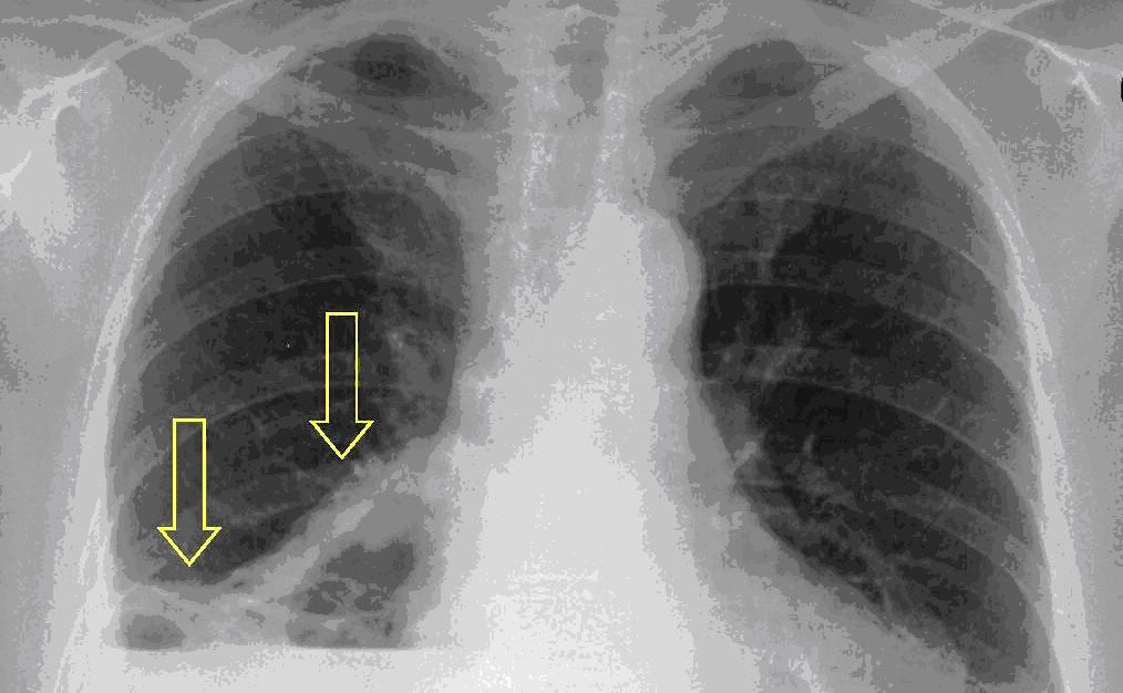 hasnyálmirigyrák röntgen helminthiasis doh