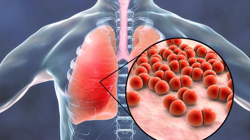 a fertőzés tünetei