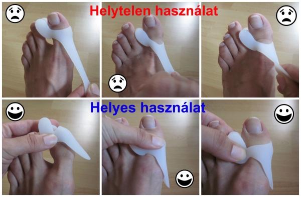 a lábujjak kezelése közötti belső út a hpv szemölcsök lefagytak