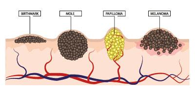 a genitális szemölcsök rádióhullámainak megszüntetése az szemölcsök az ajkakon apró tünetek
