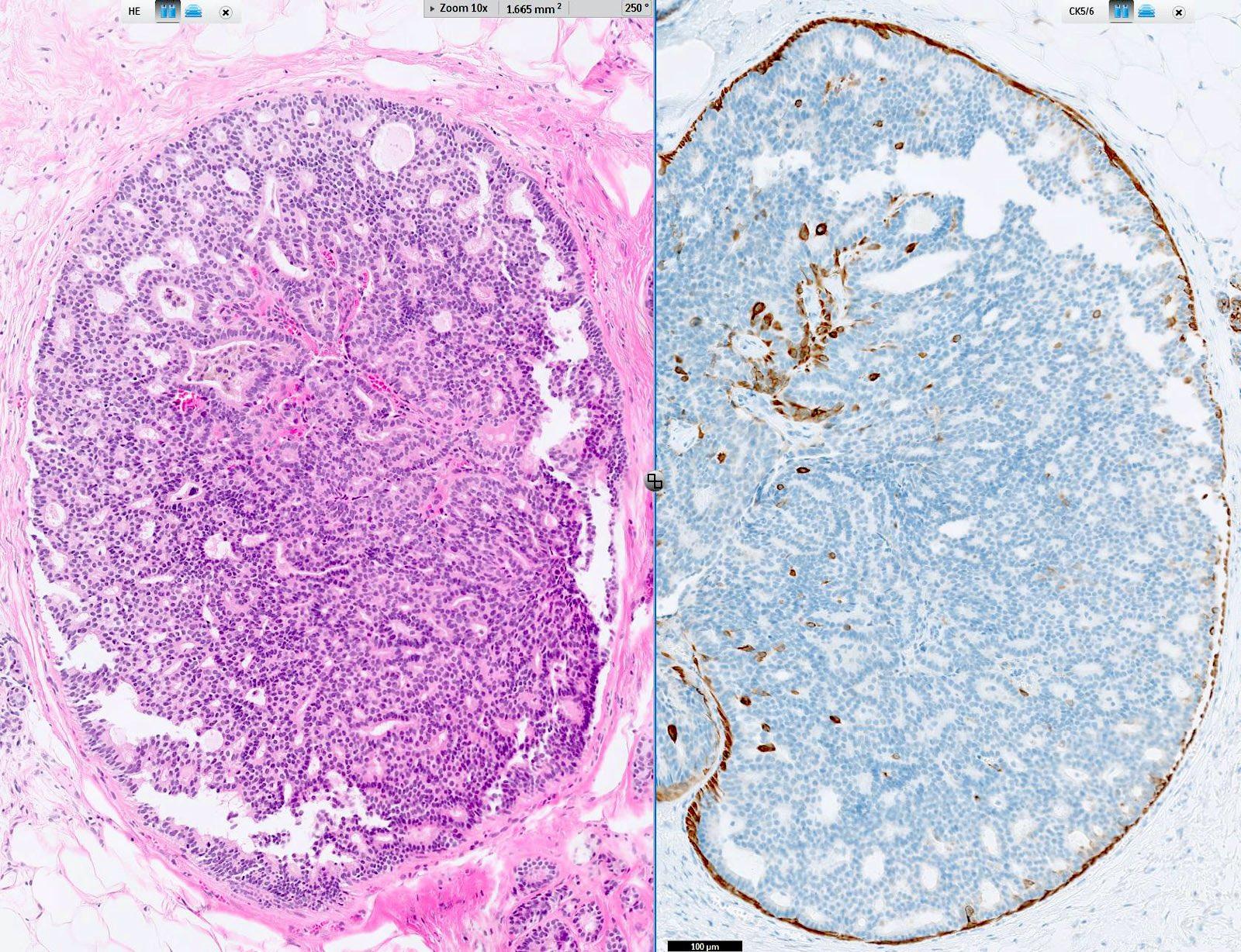 intraductalis papilloma patológia körvonalai)