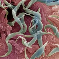 hogyan lehet eltávolítani a genitális szemölcsöket a húgycsőből vestibularis kutya papillomatosis vérzik