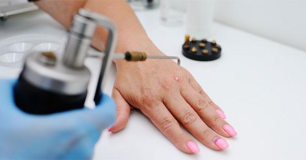 szemölcs kezelés bőrgyógyász
