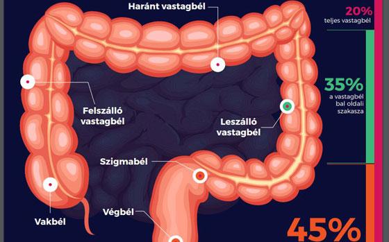 A vastagbélrák és a végbélrák tünetei - mire figyeljünk?