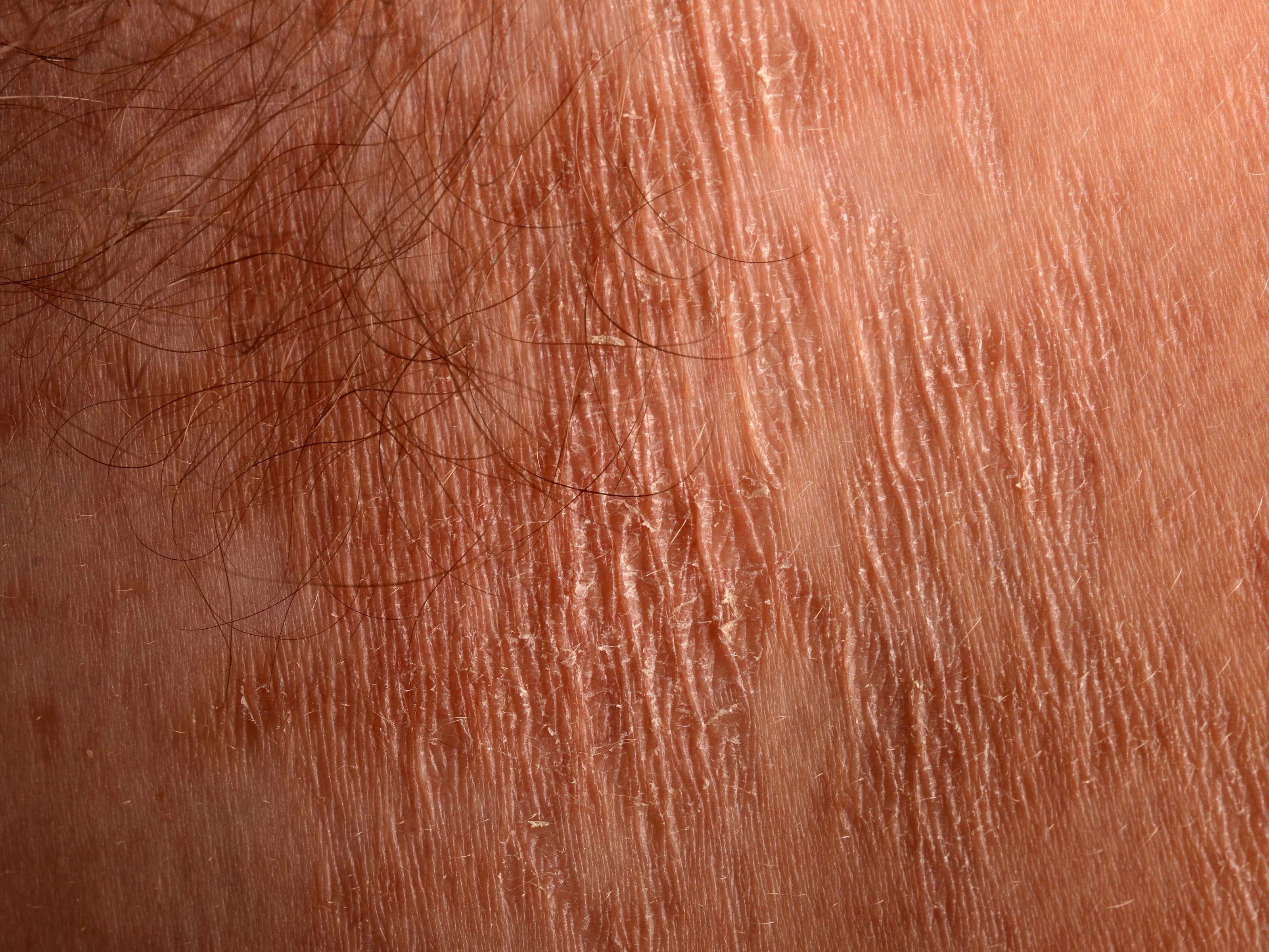 papillomatosis cutis confluens et reticularis papillomavírusos ember kockáztat