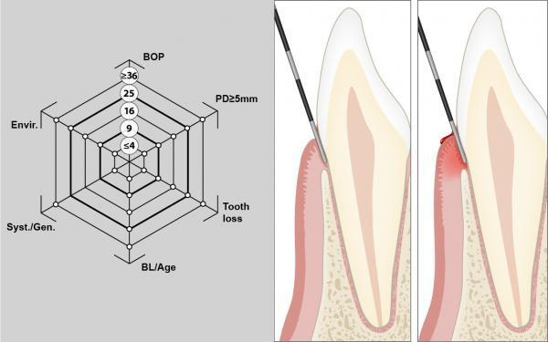 Hogyan kezeljük a lapos papillómákat a testen. A szemölcs eltávolítása és kezelése - HáziPatika