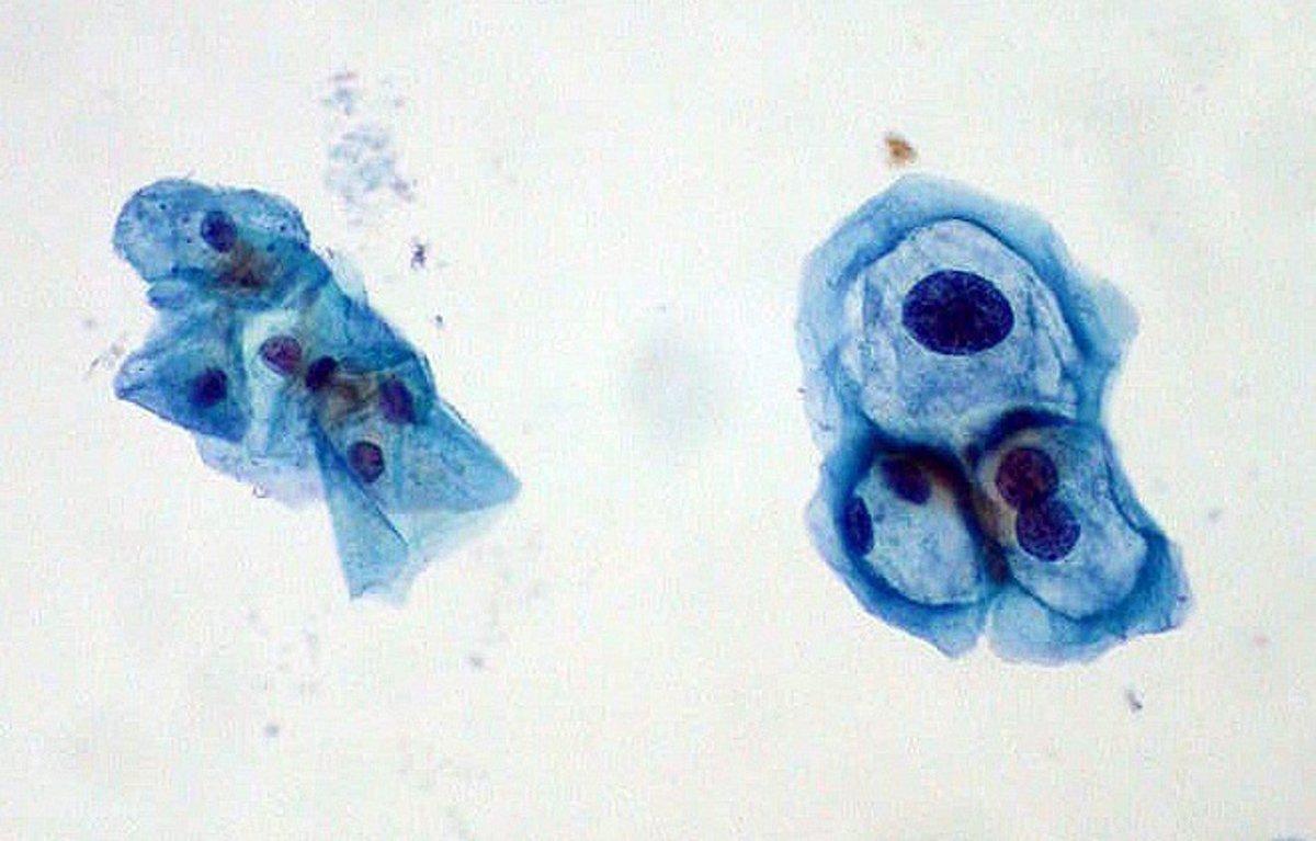 a papillomavírus inkubációjának időtartama