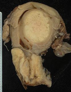 a giardia vastagbél szövettana inkubációs periódus condyloma esetén