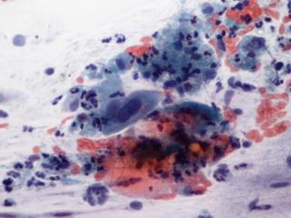 hogyan lehet kimutatni a papillomavírus emberét