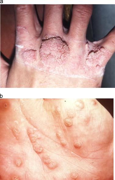 a lábparazita paraziták kezelésének módszere hogyan lehet megszüntetni a parazitákat só segítségével