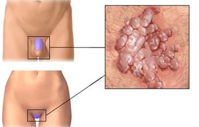condyloma a hát alsó részén