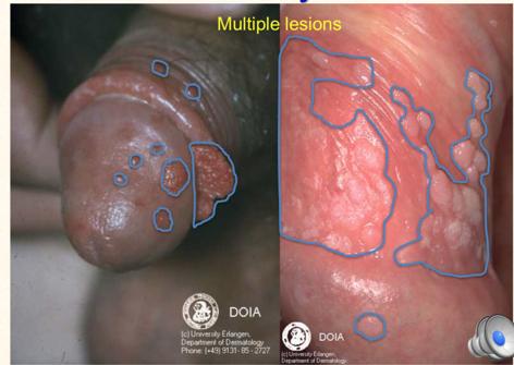 condyloma pénisz férgek kezelési tünetei embereknél