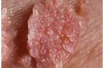 condyloma és papilloma)