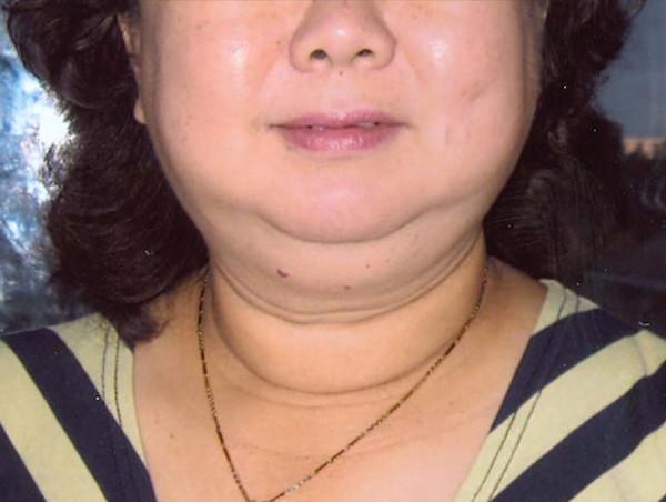 családi rák szindrómák meghatározása genitális szemölcs papilloma szemölcsök