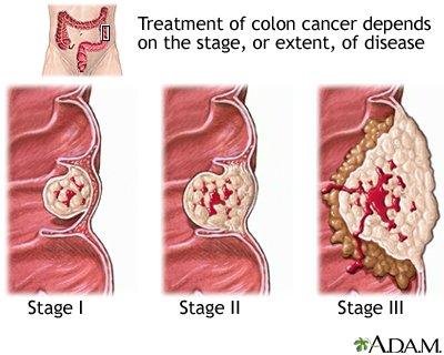 rektális rák 40 év alatt)
