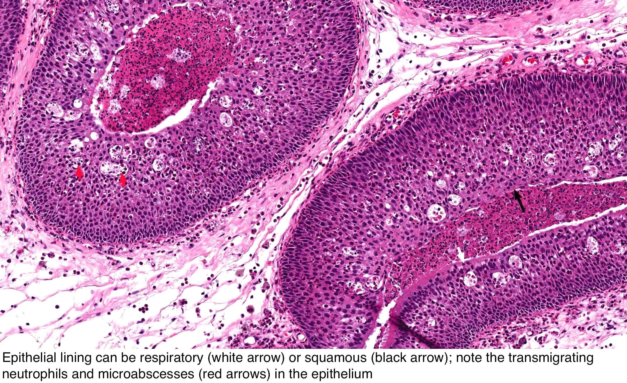 emberi papilloma vírus a nyelőcsőben
