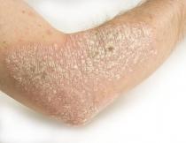 emberi rákos papillomavírus